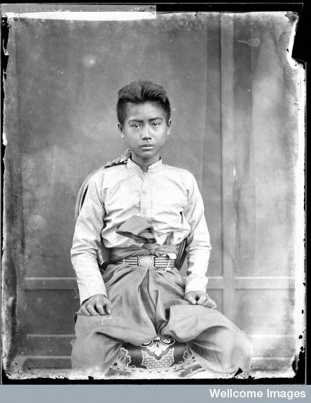 Siamese youth, photo by John Thomson. Courtesy of the Wellcome Library.